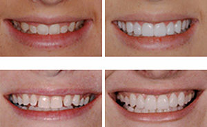 Dental Veneers - Centreville Dental Wellness Center