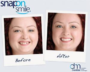 Snap-On-Smile in Centreville Dental Wellness Center